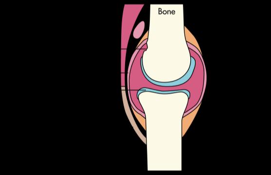 What causes rheumatoid arthritis?
